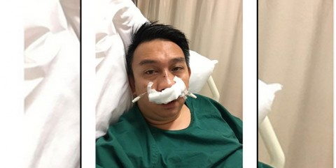 "Kecelakaan Saat Main Basket, Hidung Augie Fantinus ""Retak"""