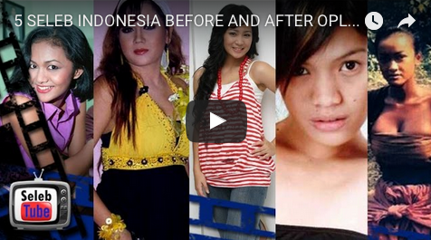 5 SELEB INDONESIA BEFORE AND AFTER OPLAS